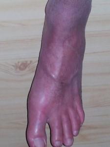 Verkleurde voet 2